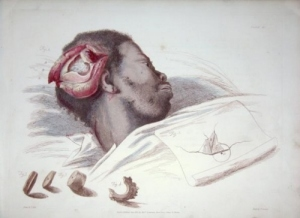 Illustrations of the Great Operations of Surgery by Charles Bell, 1815.