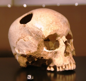 Trepanned girl's skull [3500 BC, Nat.History Museum, Lausanne (Rama)]